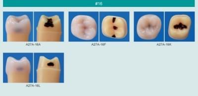 Model zubu so zubným kazom (zub č. 16)