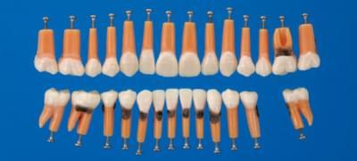 Model zubu s vetvením a zubným kameňom (sada 27 zubov)