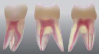 Endodonticky model zubu - 3 kanáliky
