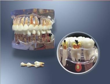 MDO-64 - Zväčšený model pre zubnú hygienu a vývoj zubného kazu