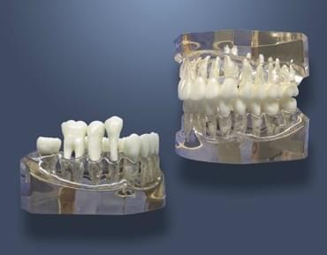 MDO-63 - Zväčšený model pre zubnú hygienu