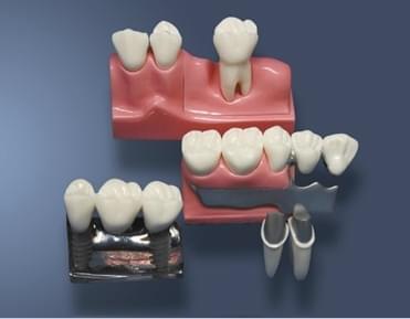MDO-59 - Rekonštrukcia odnímateľnej čiastočnej zubnej protézy a implantátov
