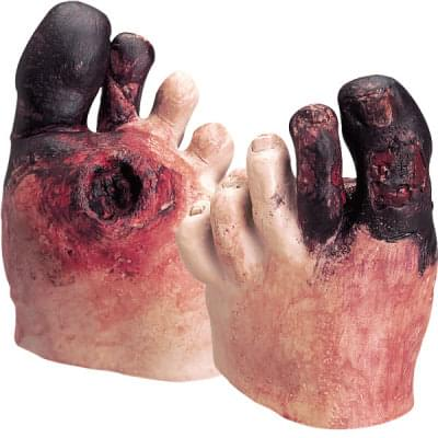 WA21216 - Sada pre ukážku nezdravej starostlivosti o chodidlo