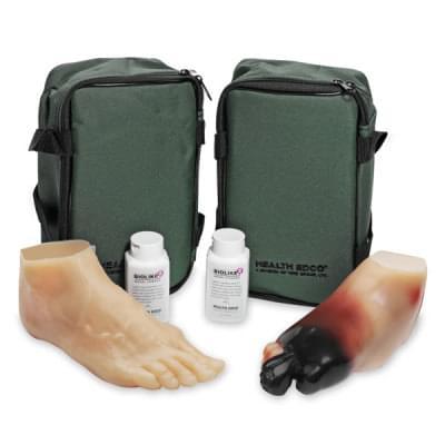 SB43093 - Sada modelov chodidlá diabetika