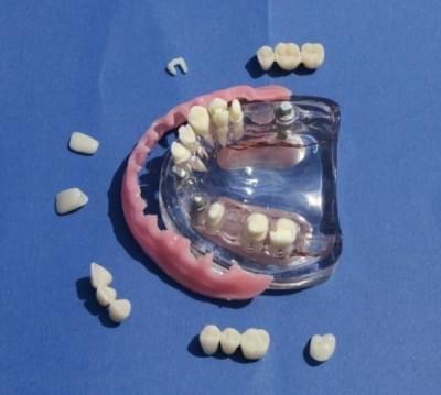 MDO-54 - Fixná protéza implantátu