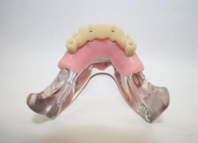 MDO-56 - Model prevedenia 4 implantátov