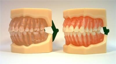 MDO-07 - Vyberateľné anatomické zuby