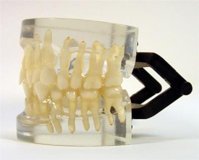 MDO-15 - Ortodoncia - trieda I - zhlukovanie