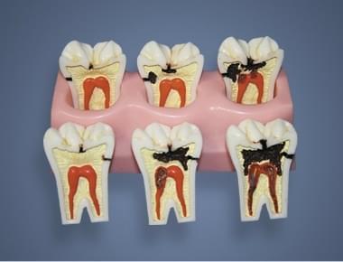 MDO-58 - Štádiá zubného kazu