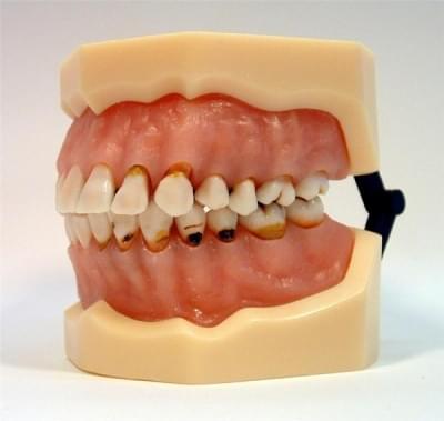 MDO-27 - Zubné kazy