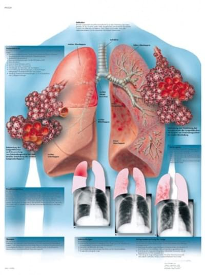 VR1326L - Zápal pľúc