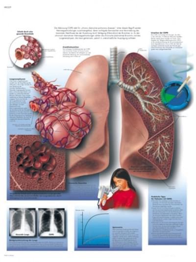 VR1329L - Chronické ochorenie pulmonálnej obštrukcie
