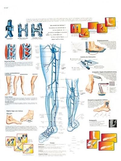 VR1367L - Kŕčové žily
