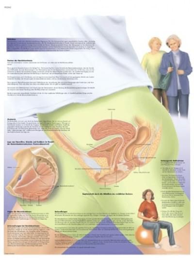 VR1542L - Ženská močová inkontinencia
