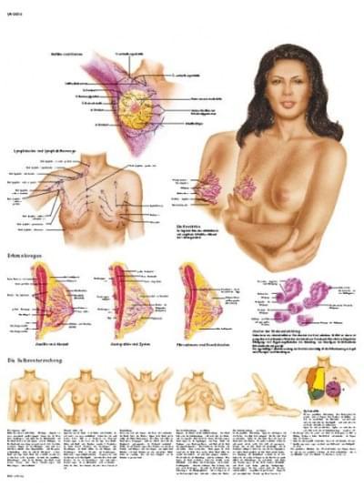 VR1556L - Ženský prsník