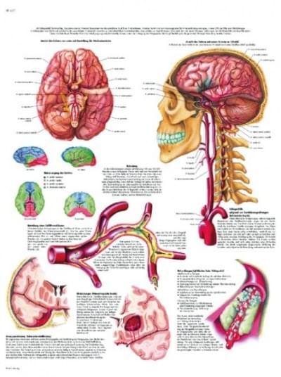 VR1627L - Mozgová mŕtvica