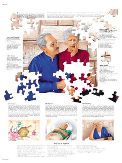 VR1628L - Alzheimerova choroba