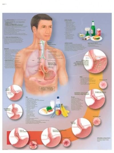 VR1711L - Gastroezofageálne ochorenie