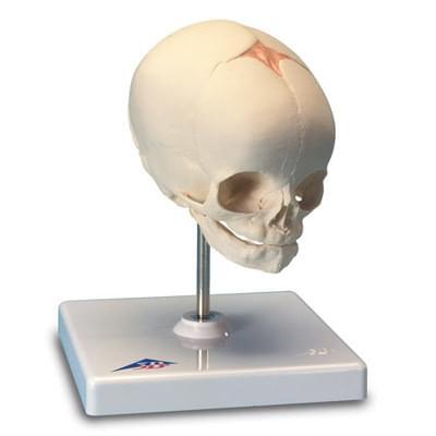 A26 - Model lebky plodu, prirodzený odliatok, 30. týždeň tehotenstva, na stojane