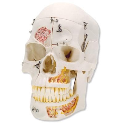 A27 - Luxusný model ľudskej lebky pre ukážku usporiadania zubov, 10 častí