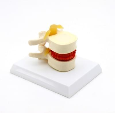 GD1501 - Simulátor vertebrálnej diskopatie