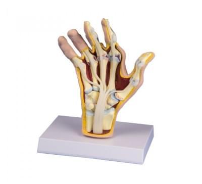 M26 - Model ruky s reumatoidnou artritídou