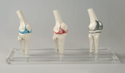 1125 - Model kolenného implantátu