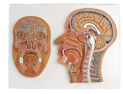 C13 - Rez strednou a prednou časťou hlavy