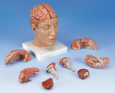 C25 - Mozog s tepnami v hlave