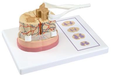 C41 - Miecha s nervovým zakončením