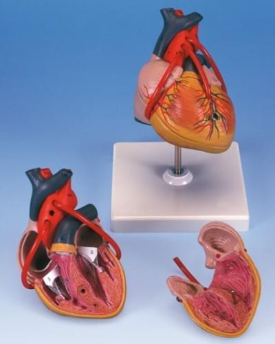 G05 - Srdce s bypassom