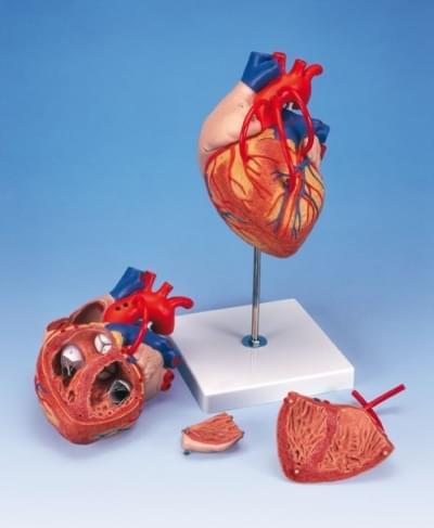 G06 - Model srdca s bypassom