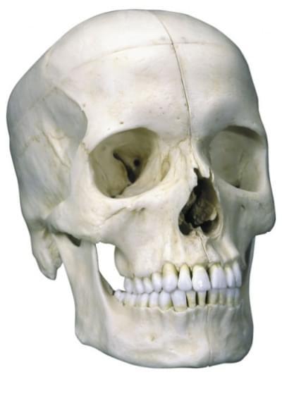 A281 - Členená základná lebka