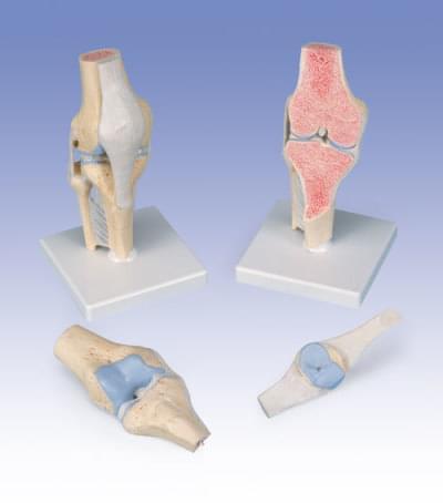 A89 - Model kolenného kĺbu v reze