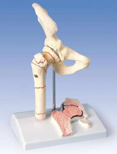 A88 - Stehenná zlomenina a bedrová osteoartritída