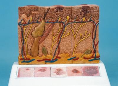 J15 - Model rakoviny kože