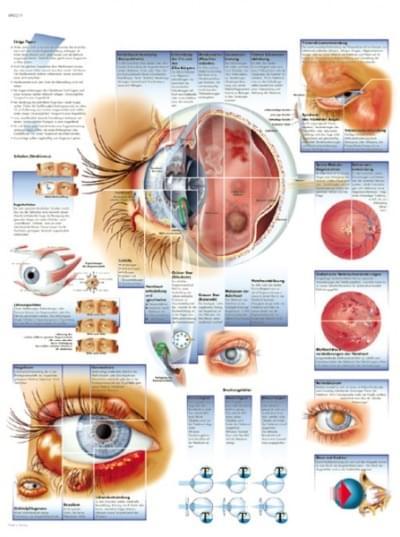 VR1231UU - Nemoci očí