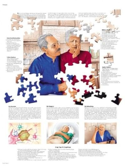 VR1628UU - Alzheimerova choroba