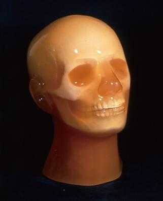 "PH-3 - ""Phantom"" angiografie hlavy ACS"