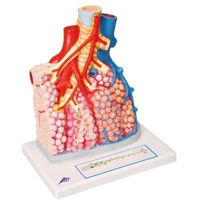 G60 - Plicní lalok s okolními krevními cévami