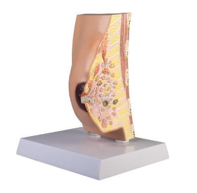L280 - Model prsníka v priečnom reze s ochoreniami