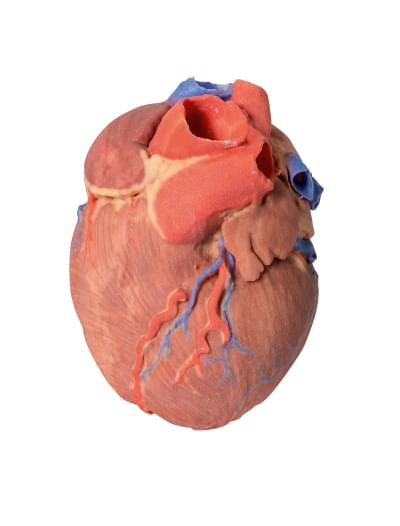 MP1700 - Srdce