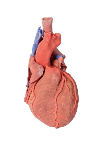 MP1710 - Srdce a distální průdušnice, carina tracheae a primární bronchus