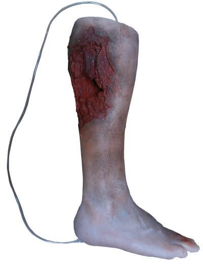 R50010 - Model nohy s vážnym poranením, od kolena dole
