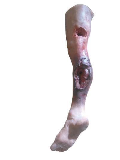 R50020 - Model nohy s vážnym poranením, celá noha